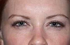 Botox / Dysport