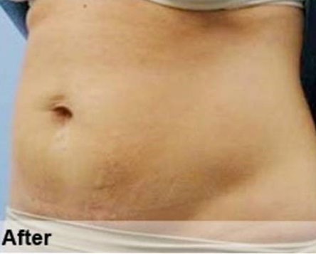 Fat Reduction With Desobody