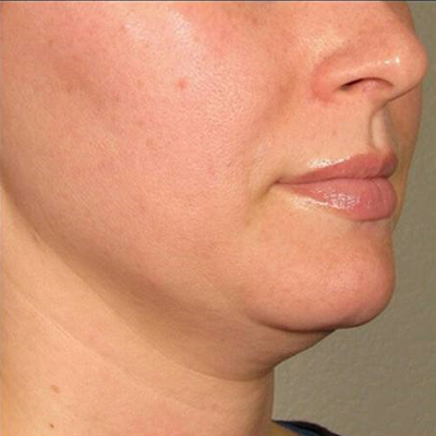 Double Chin Correction By Intralipotherapy (DESOFACE)