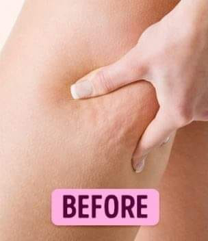 Mesotherapy Anti Cellulite Treatment